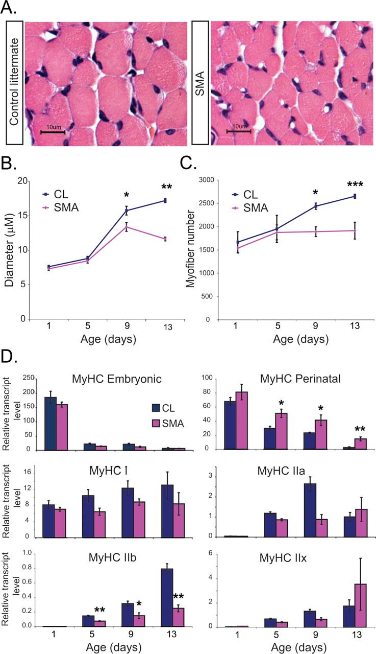 Impaired Synaptic Vesicle Release and Immaturity of Neuromuscular