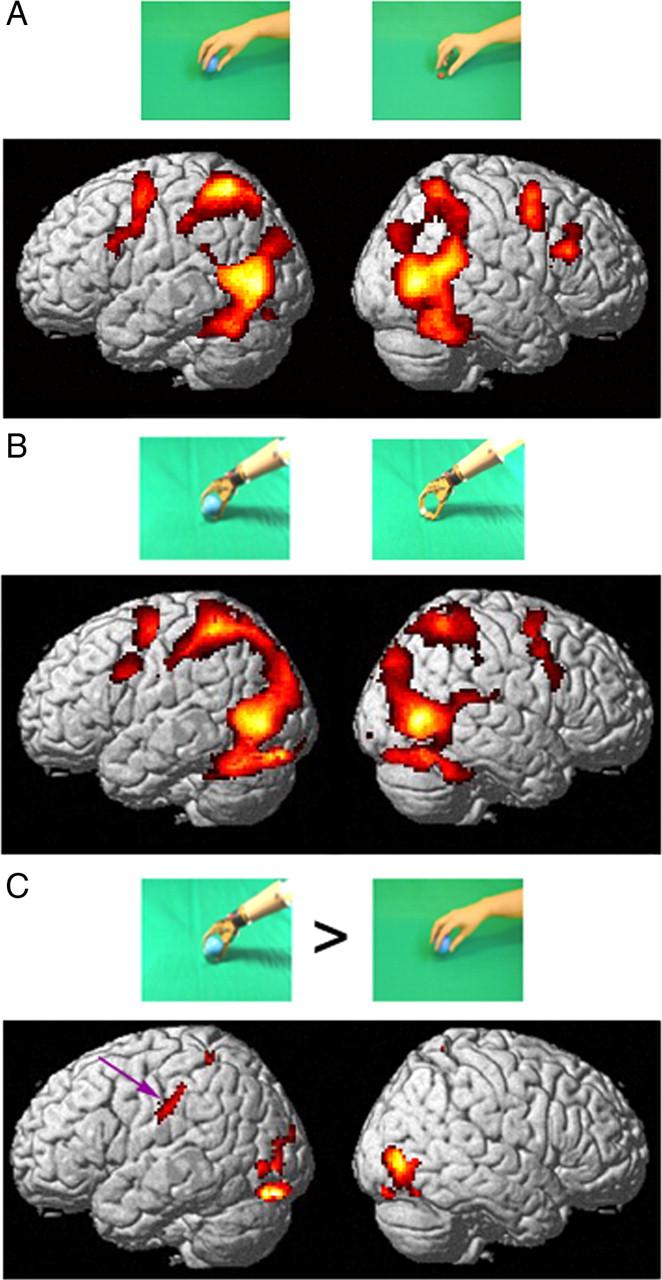 The Representation Of Tool Use In Humans And Monkeys Common And