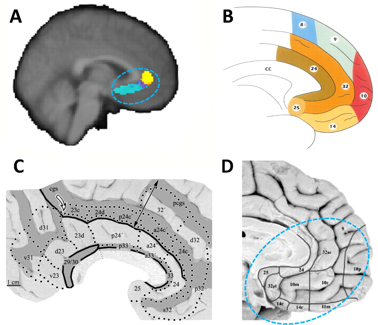 Connectivity-Based Parcellation of Human Cingulate Cortex and Its ...