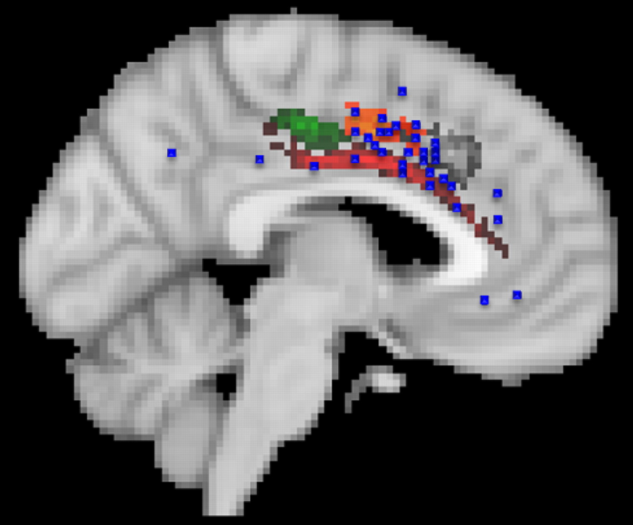 Connectivity Based Parcellation Of Human Cingulate Cortex And Its