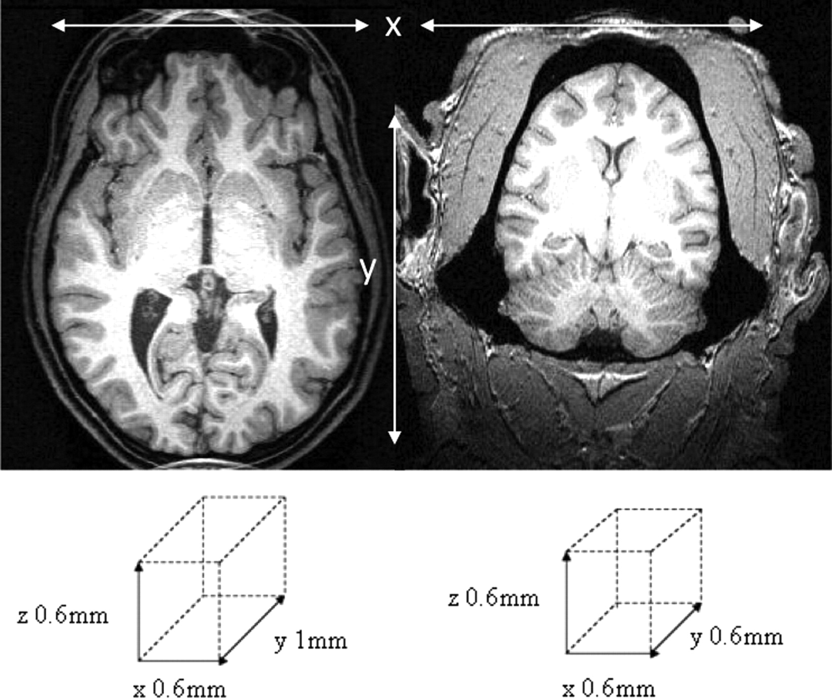 A Comparative Magnetic Resonance Imaging Study of the Anatomy ...