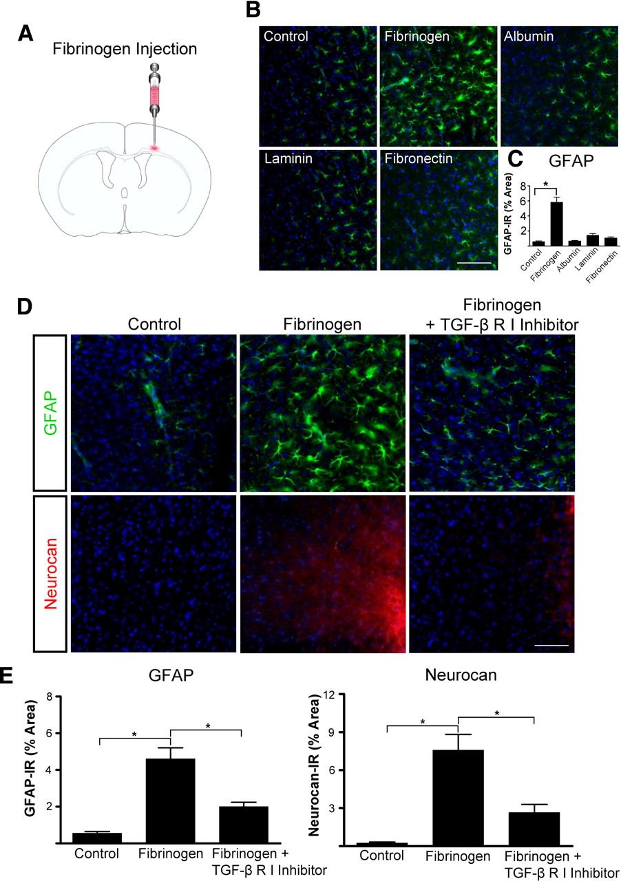 Fibrinogen Triggers Astrocyte Scar Formation by Promoting