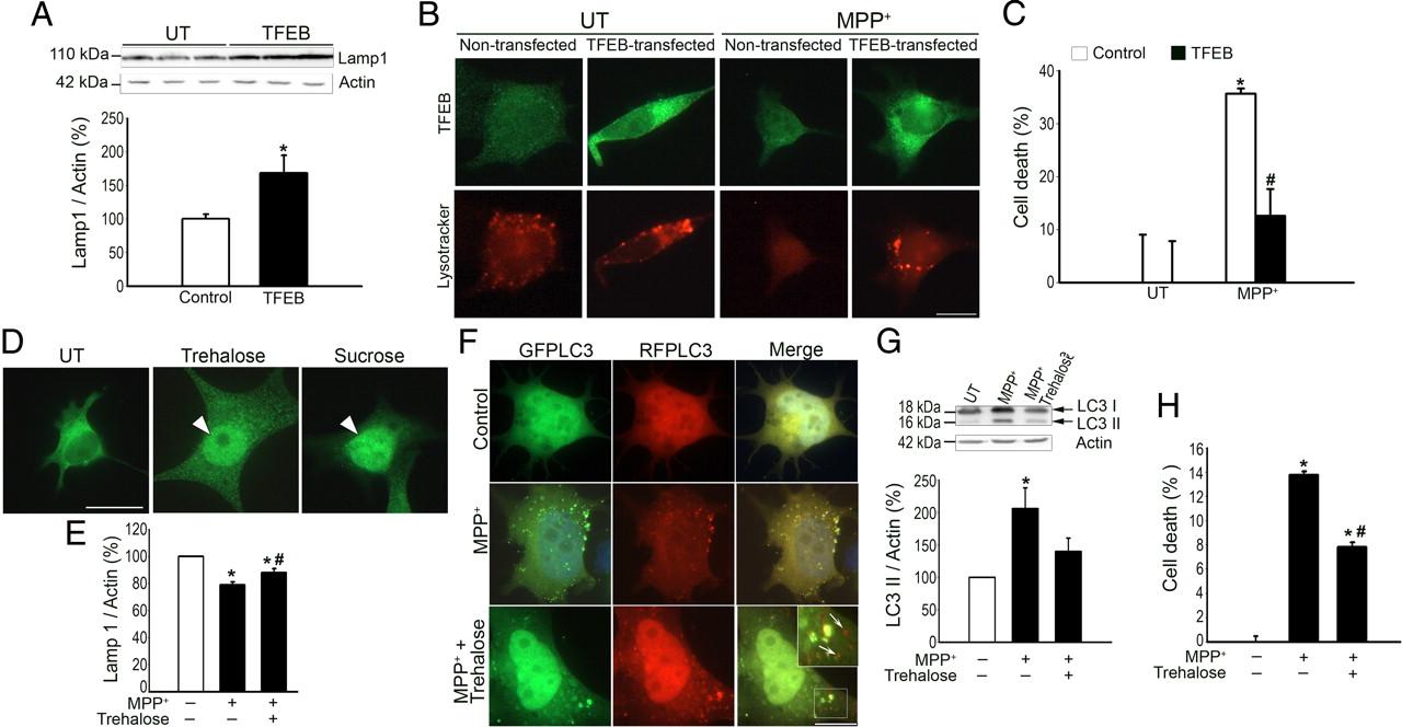 Ana Milojkovic figure 4. | pathogenic lysosomal depletion in parkinson's