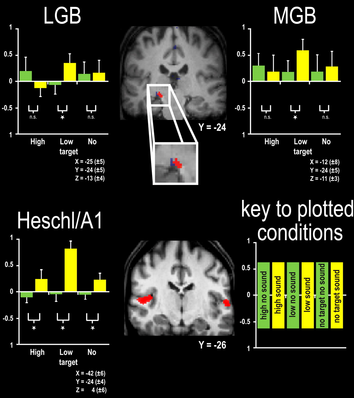 Sound-Induced Enhancement of Low-Intensity Vision