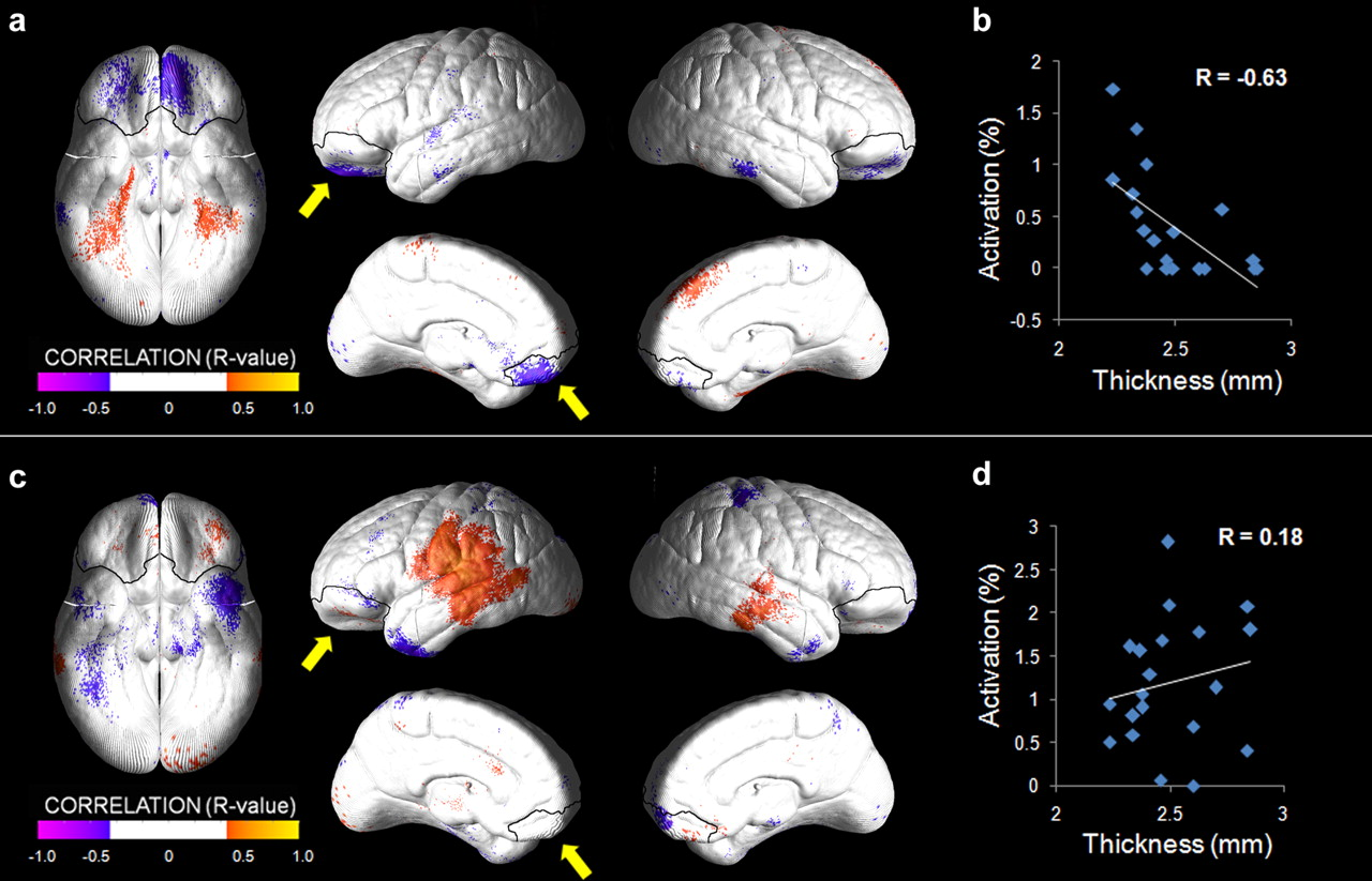 a review of amygdala activity as correlated with emotional information – kluver-bucy syndrome and amygdala lesions link the amygdala to emotional – increased oral activity  that has been correlated with emotional arousal it.