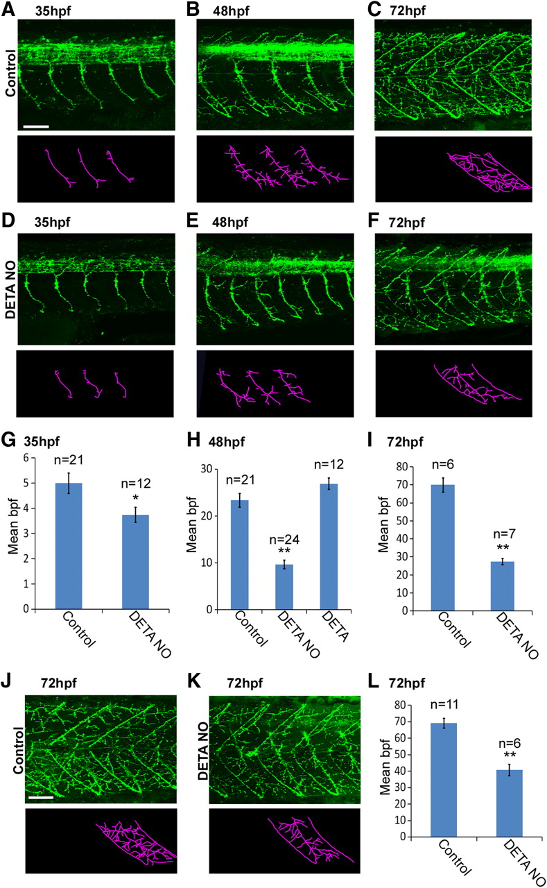 Nitric Oxide Synthase Regulates Morphogenesis Of Zebrafish Spinal