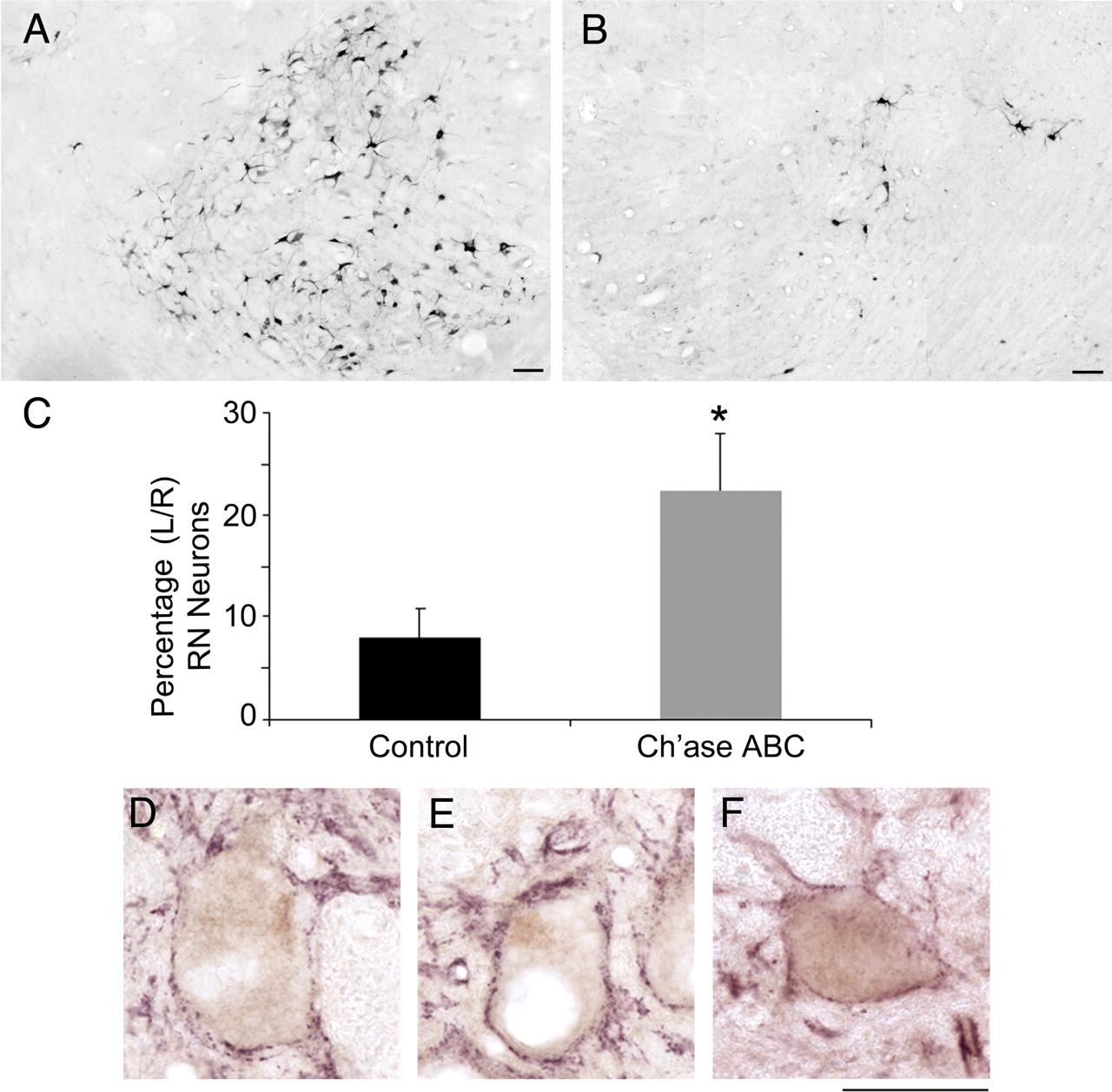 Chondroitinase ABC Promotes Recovery of Adaptive Limb