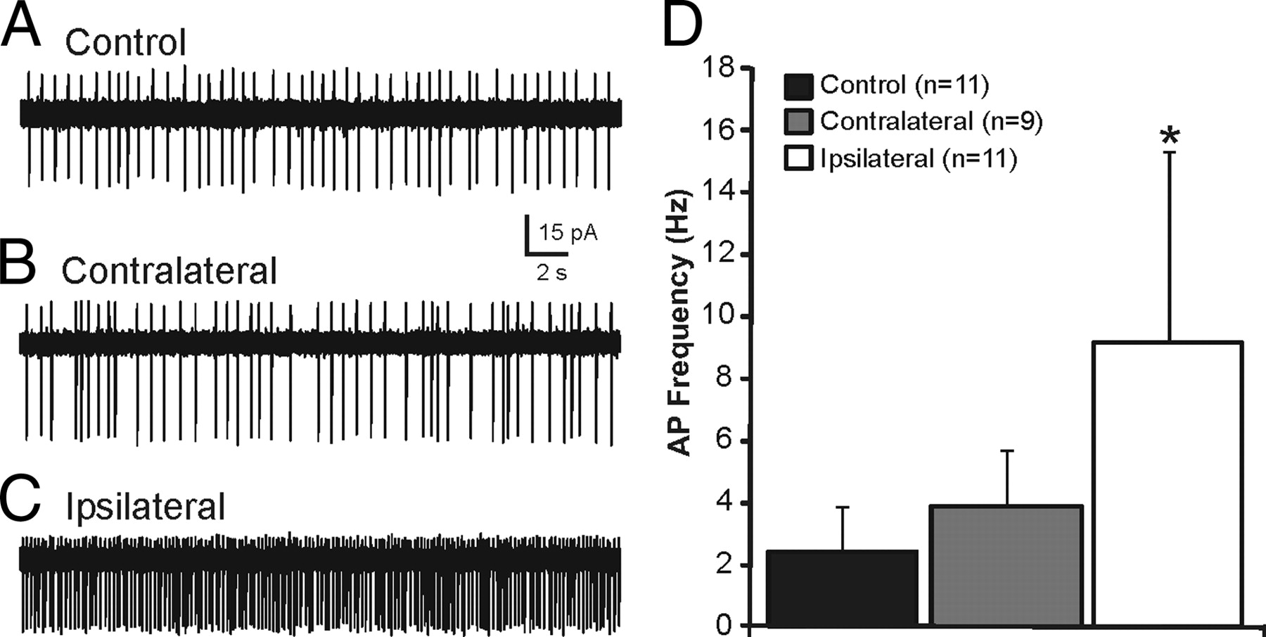Synaptic Reorganization of Inhibitory Hilar Interneuron
