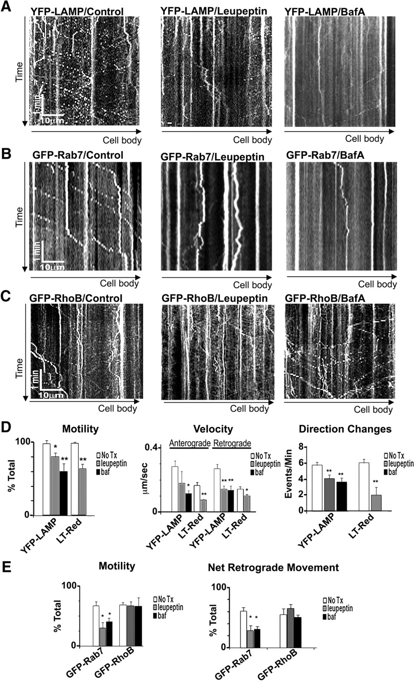 Lysosomal Proteolysis Inhibition Selectively Disrupts Axonal