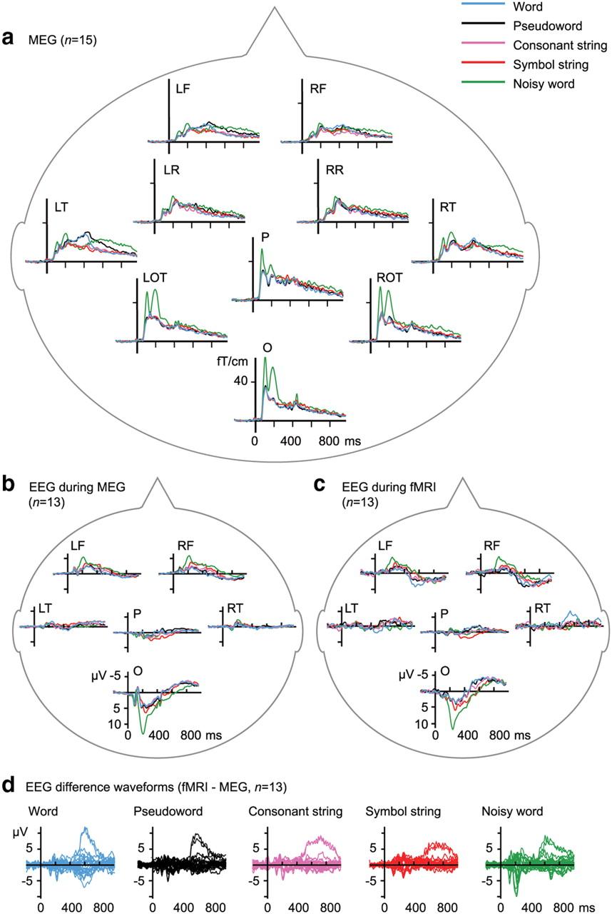 Functional magnetic resonance imaging blood oxygenation level download figure buycottarizona