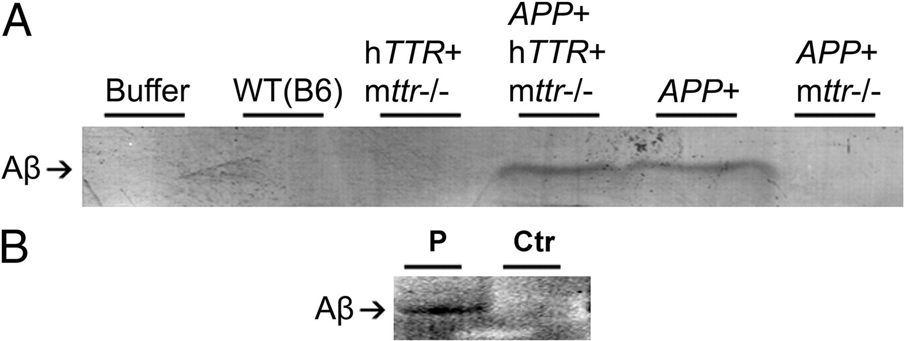 Neuronal Production of Transthyretin in Human and Murine