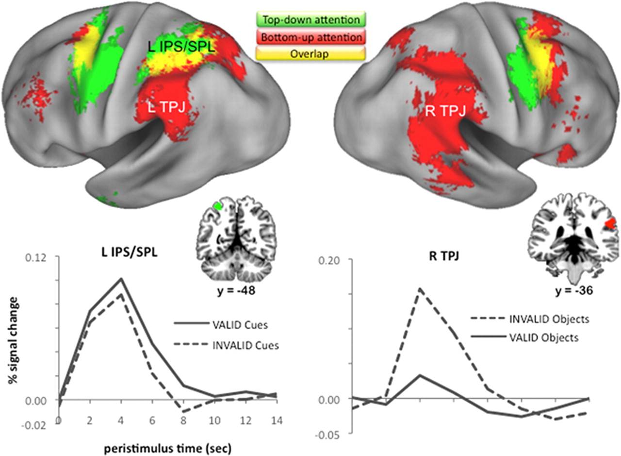 neural correlates of topdown and bottomup attention