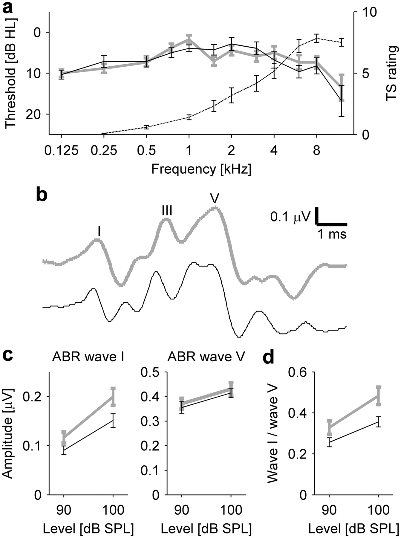 Tinnitus with a Normal Audiogram: Physiological Evidence for Hidden