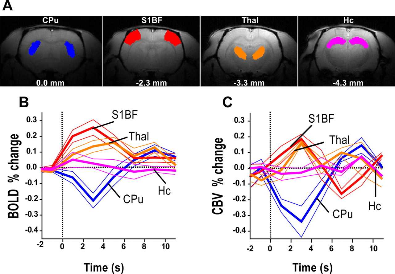 Where Fmri And Electrophysiology Agree To Disagree