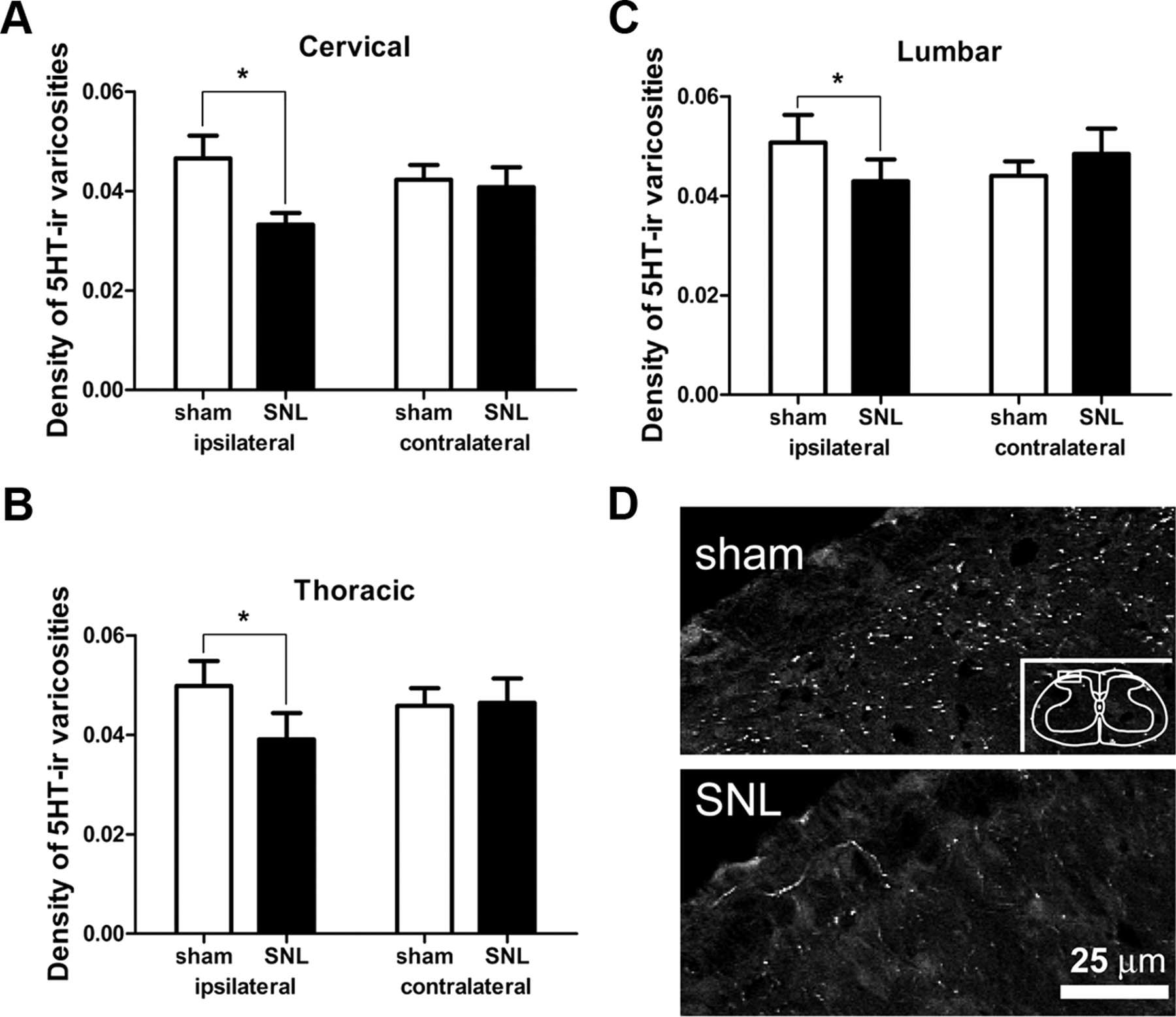 Neuronal Loss in the Rostral Ventromedial Medulla in a Rat Model of