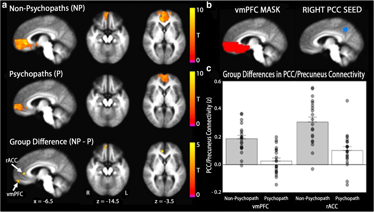 Reduced Prefrontal Connectivity In Psychopathy Journal Of Neuroscience