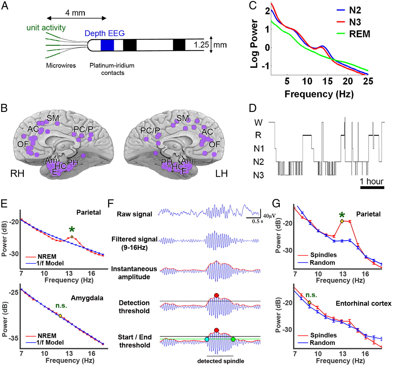 Sleep Spindles in Humans: Insights from Intracranial EEG and Unit