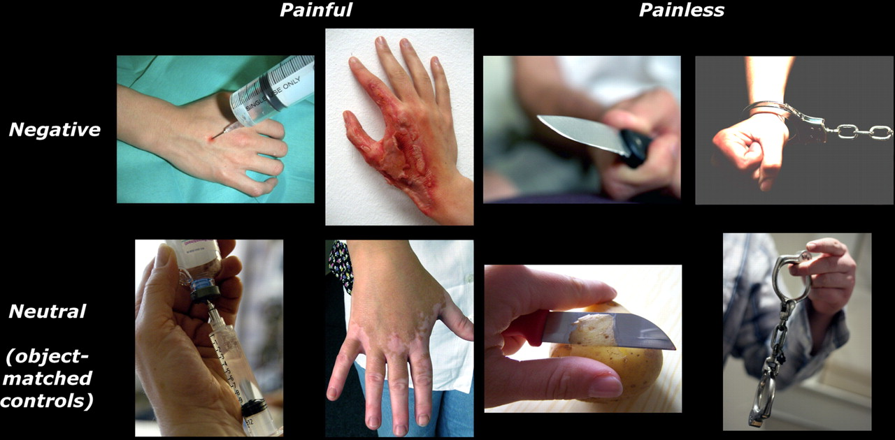 Felt and Seen Pain Evoke the Same Local Patterns of Cortical ...