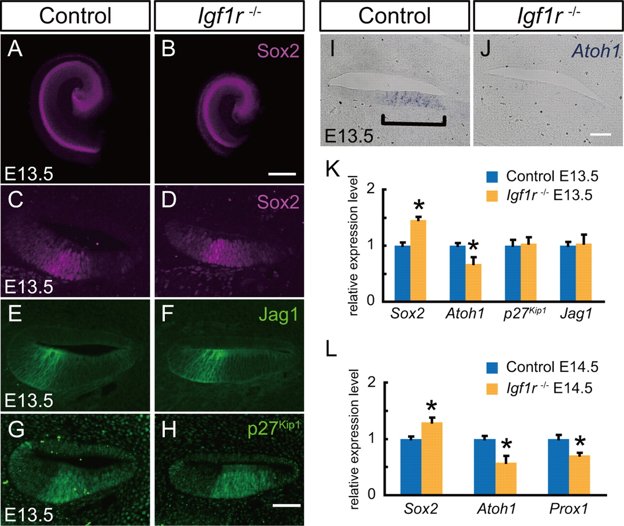 Insulin Like Growth Factor Signaling Regulates The Timing Of Sensory Xl Axis Rp 50000 Download Figure