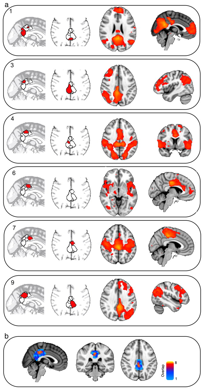 Echoes Of The Brain Within The Posterior Cingulate Cortex Journal