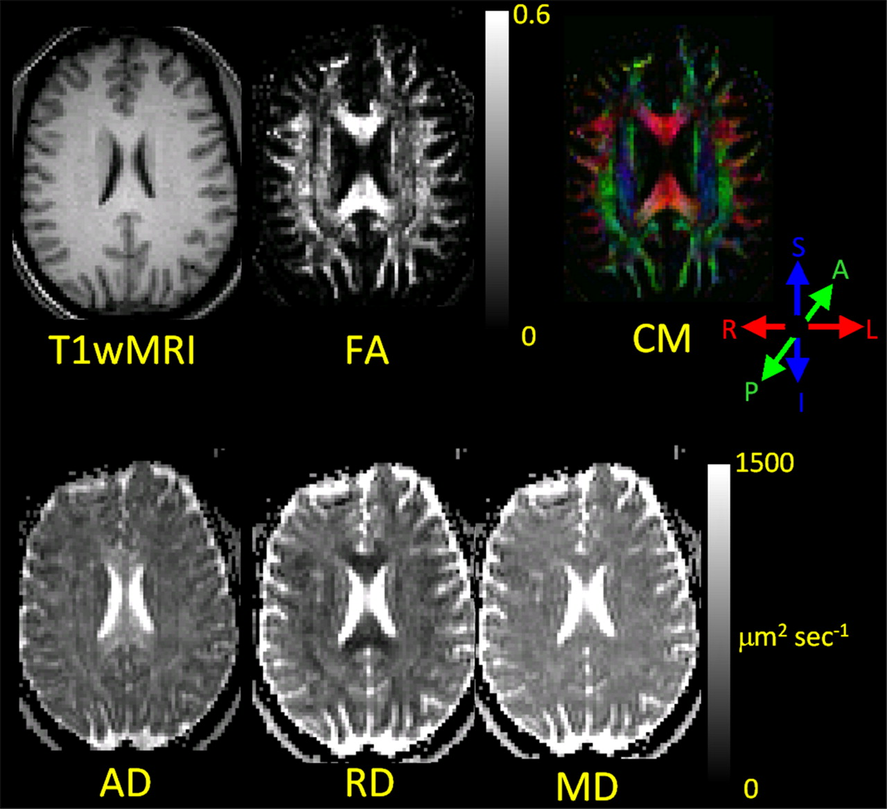 The Diffusion Tensor Imaging Toolbox | Journal of Neuroscience