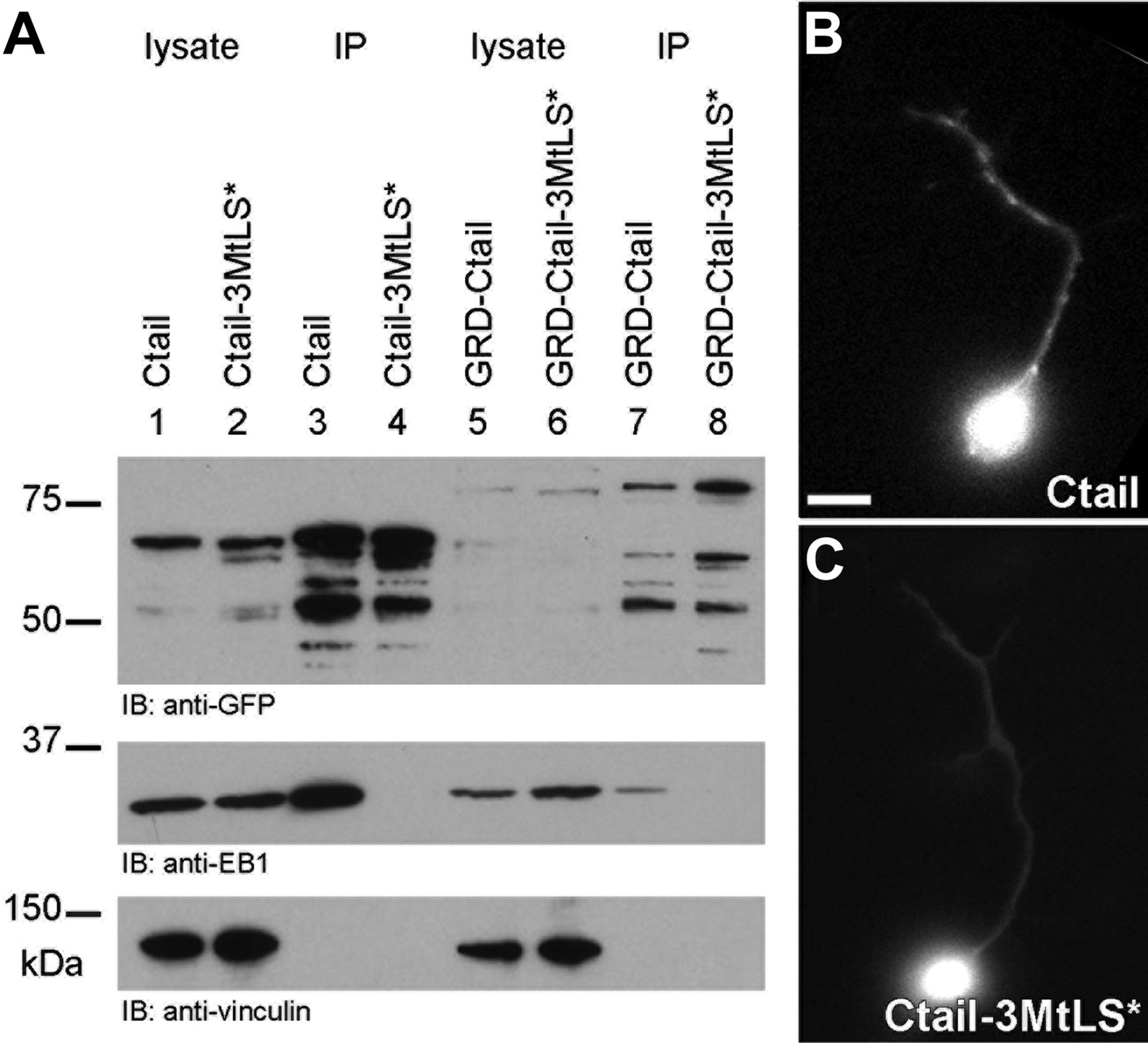Spectraplakins Promote Microtubule-Mediated Axonal Growth by