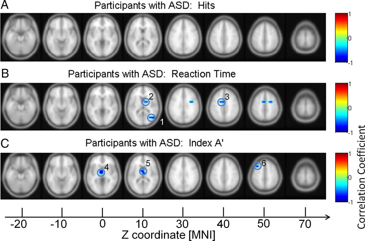 Impaired Gamma-Band Activity during Perceptual Organization