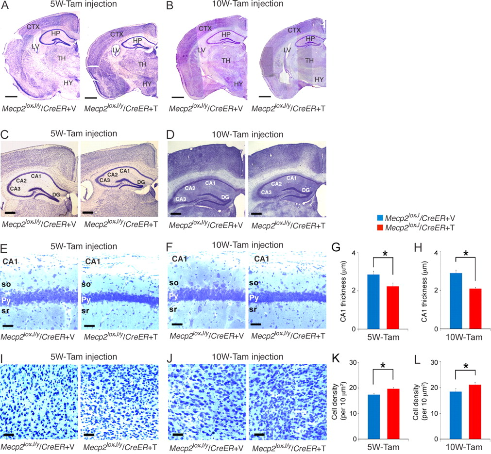 MeCP2 Is Critical for Maintaining Mature Neuronal Networks and ...