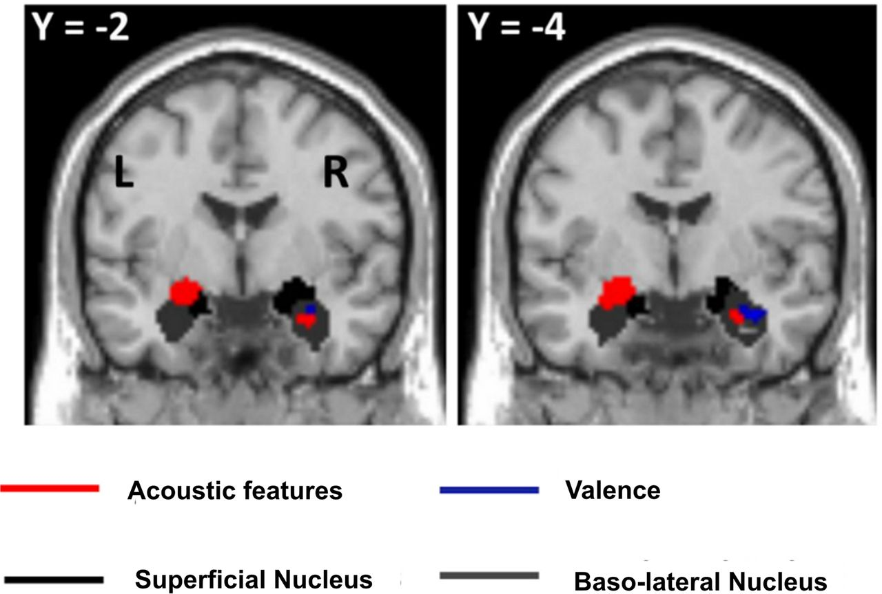 a review of amygdala activity as correlated with emotional information