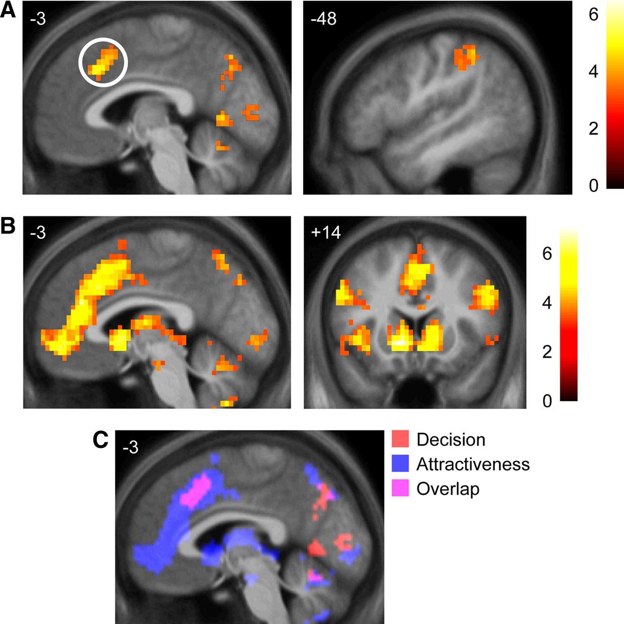 Dorsomedial Prefrontal Cortex Mediates Rapid Evaluations