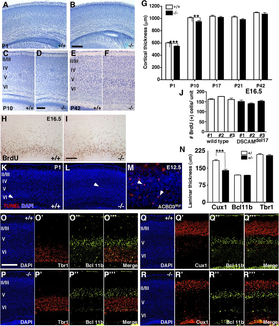 DSCAM Contributes to Dendrite Arborization and Spine Formation in