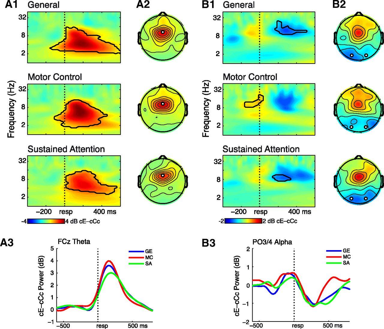 Not All Errors Are Alike: Theta and Alpha EEG Dynamics