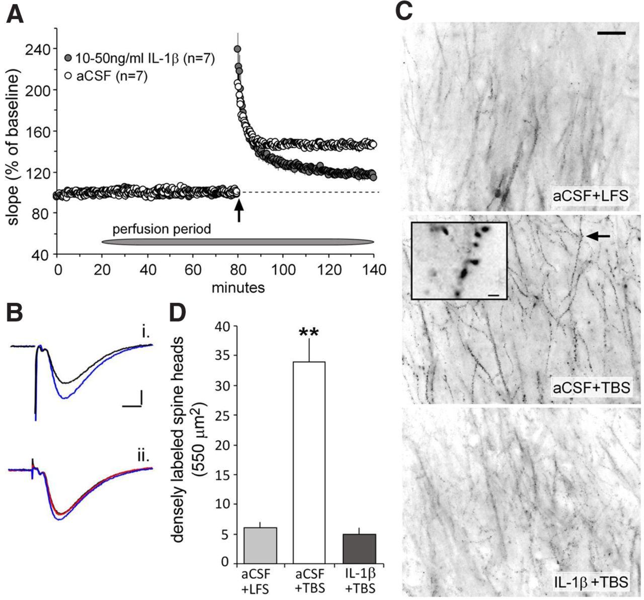 Brain Derived Neurotrophic Factor Dependent Synaptic Plasticity Is Mclaren Mt 7 Wire Diagram Download Figure