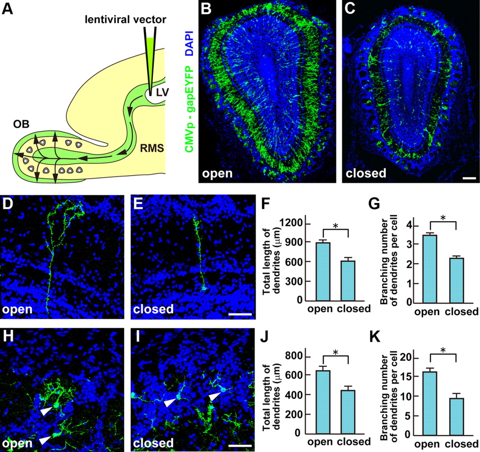 5t4 Glycoprotein Regulates The Sensory Input Dependent Development Daiwa Schematic Diagram Free Download Wiring Figure Open In New Tab Powerpoint