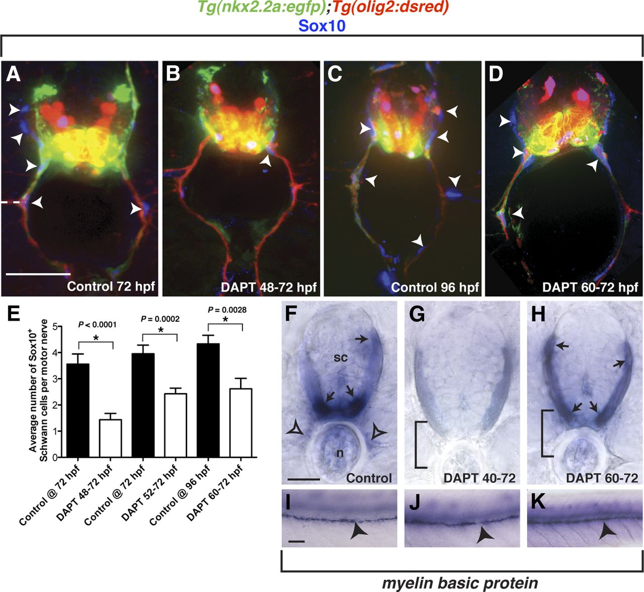 Perineurial Glia Require Notch Signaling during Motor Nerve