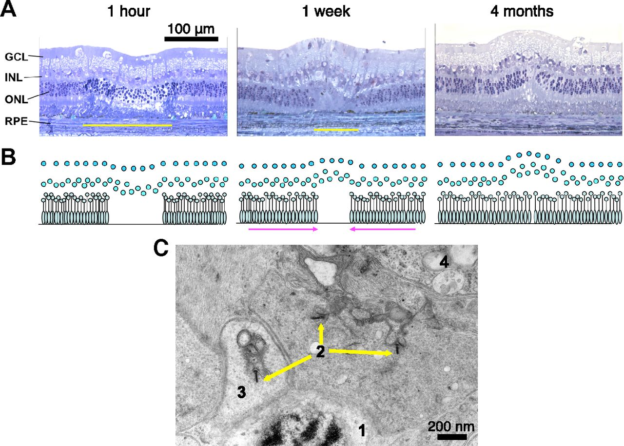 Restoration of Retinal Structure and Function after Selective ...