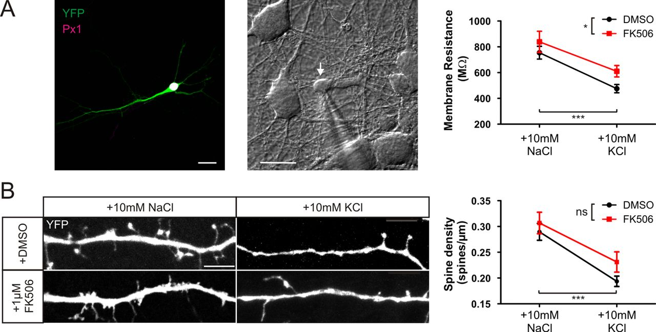 Calcineurin Signaling Mediates Activity-Dependent Relocation of the