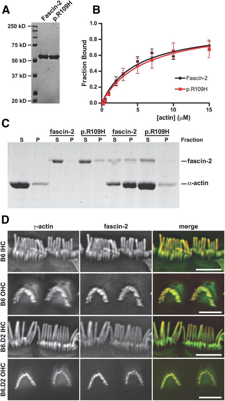 β-Actin and Fascin-2 Cooperate to Maintain Stereocilia