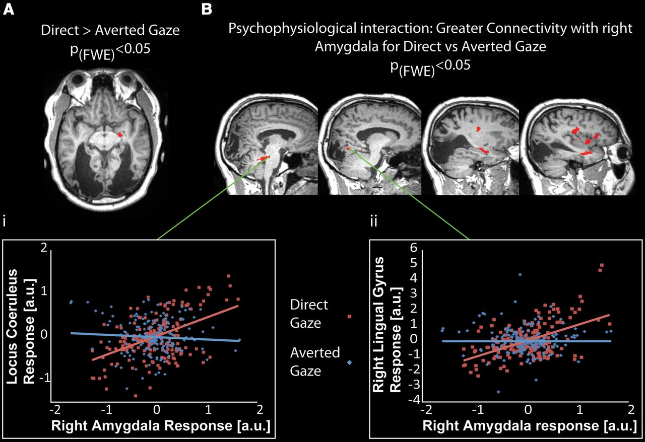 Amygdala Activation for Eye Contact Despite Complete Cortical ...