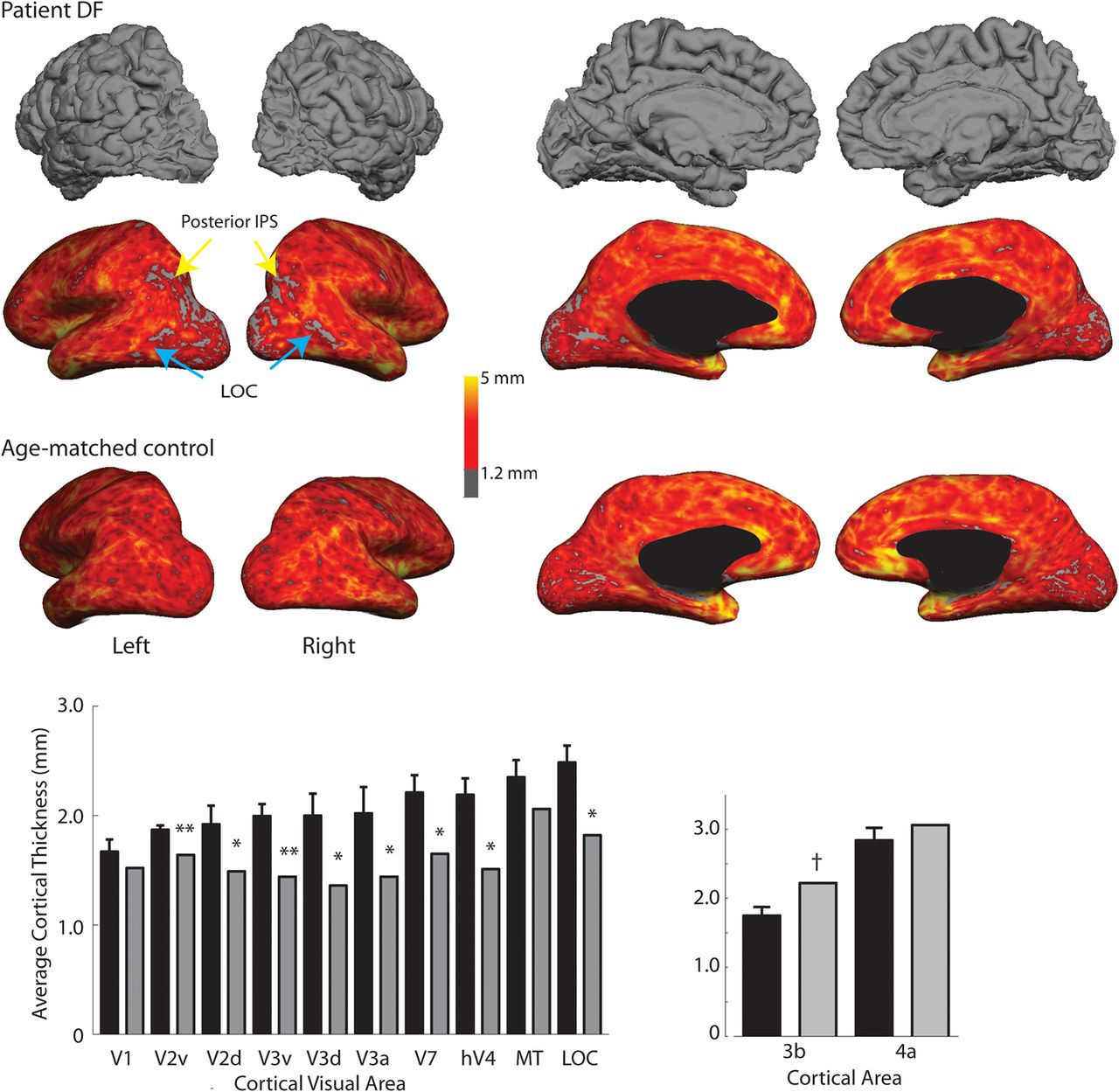 Structural and Functional Changes across the Visual Cortex of a ...