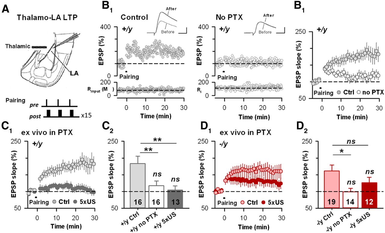 Target Specific Vulnerability Of Excitatory Synapses Leads To Meanwhile In The 14th Subcircuit A Second Vacancy Has Recently Download Figure
