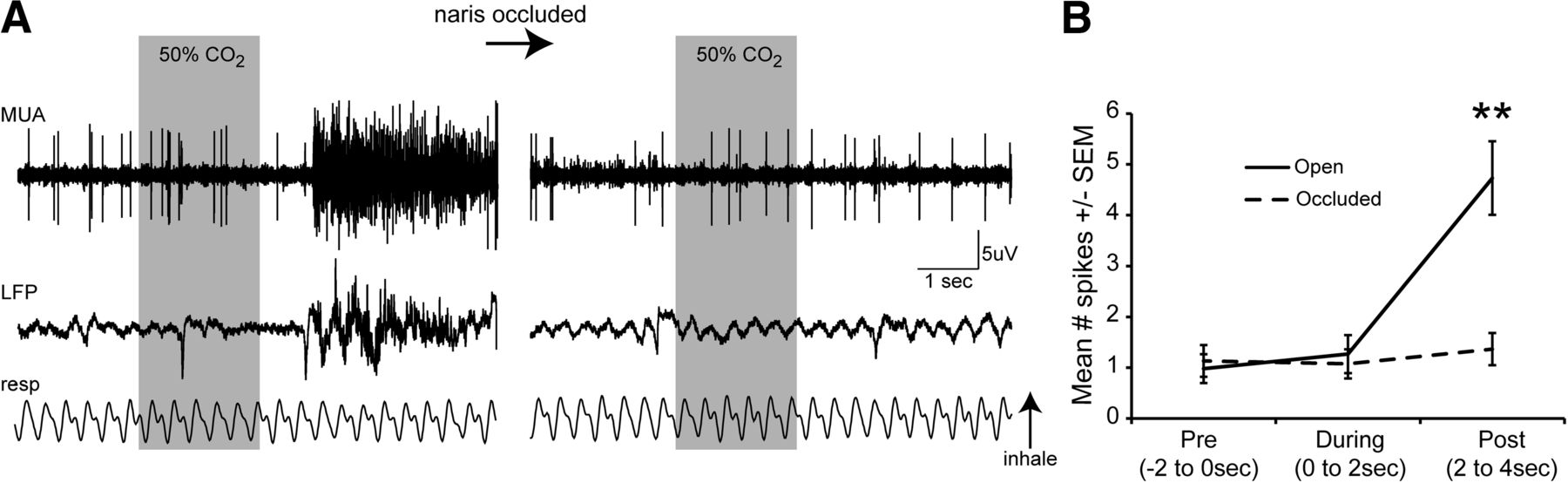 Encoding And Representation Of Intranasal Co2 In The Mouse Olfactory Multiple Feedback Bandpass Filter Download Figure