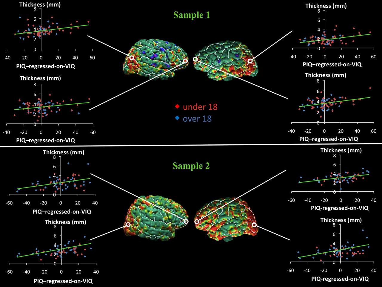 Using IQ Discrepancy Scores To Examine the Neural Correlates