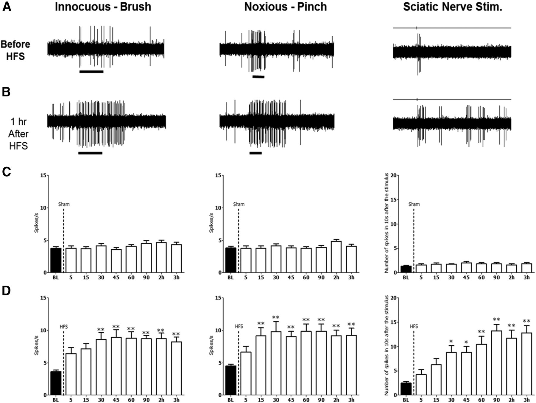 Enhanced Excitability of Thalamic Sensory Neurons and Slow-Wave EEG ...