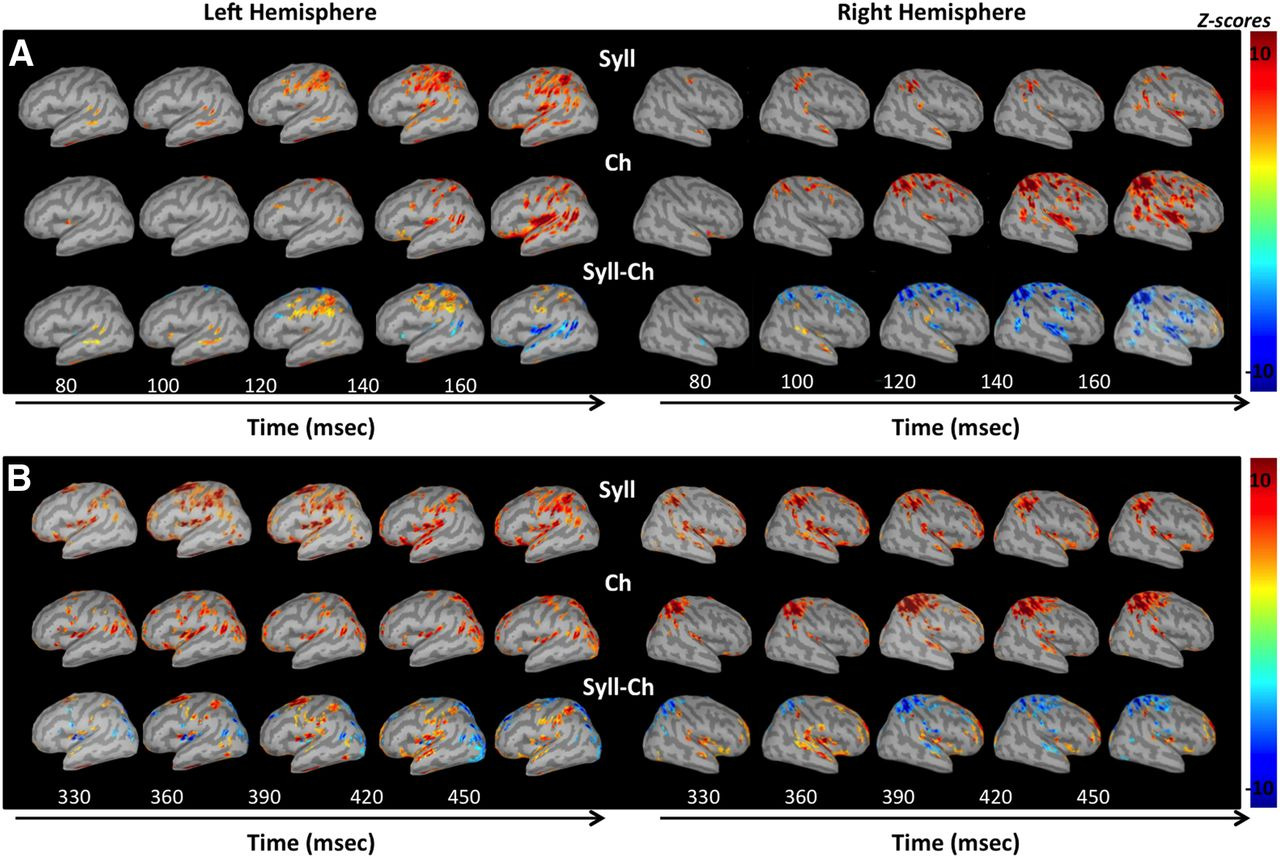 Neural Dynamics of Phonological Processing in the Dorsal