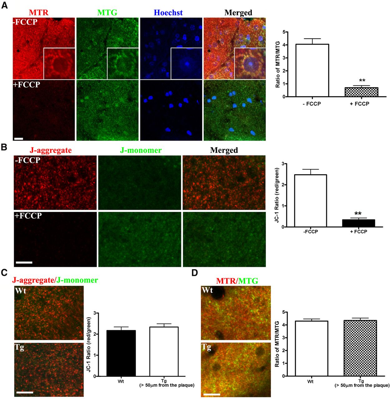 Mitochondrial Alterations Near Amyloid Plaques In An