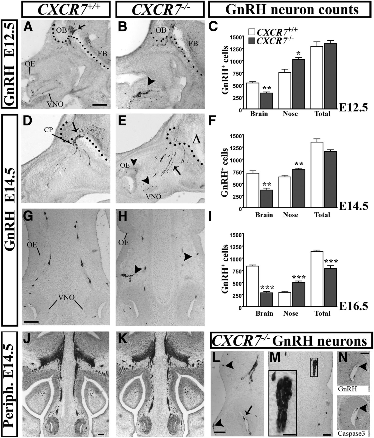 Cxc Chemokine Receptor 7 Cxcr7 Affects The Migration Of Gnrh Printed Circuit Board Captured With Jenoptik Prc14 Microscope Download Figure