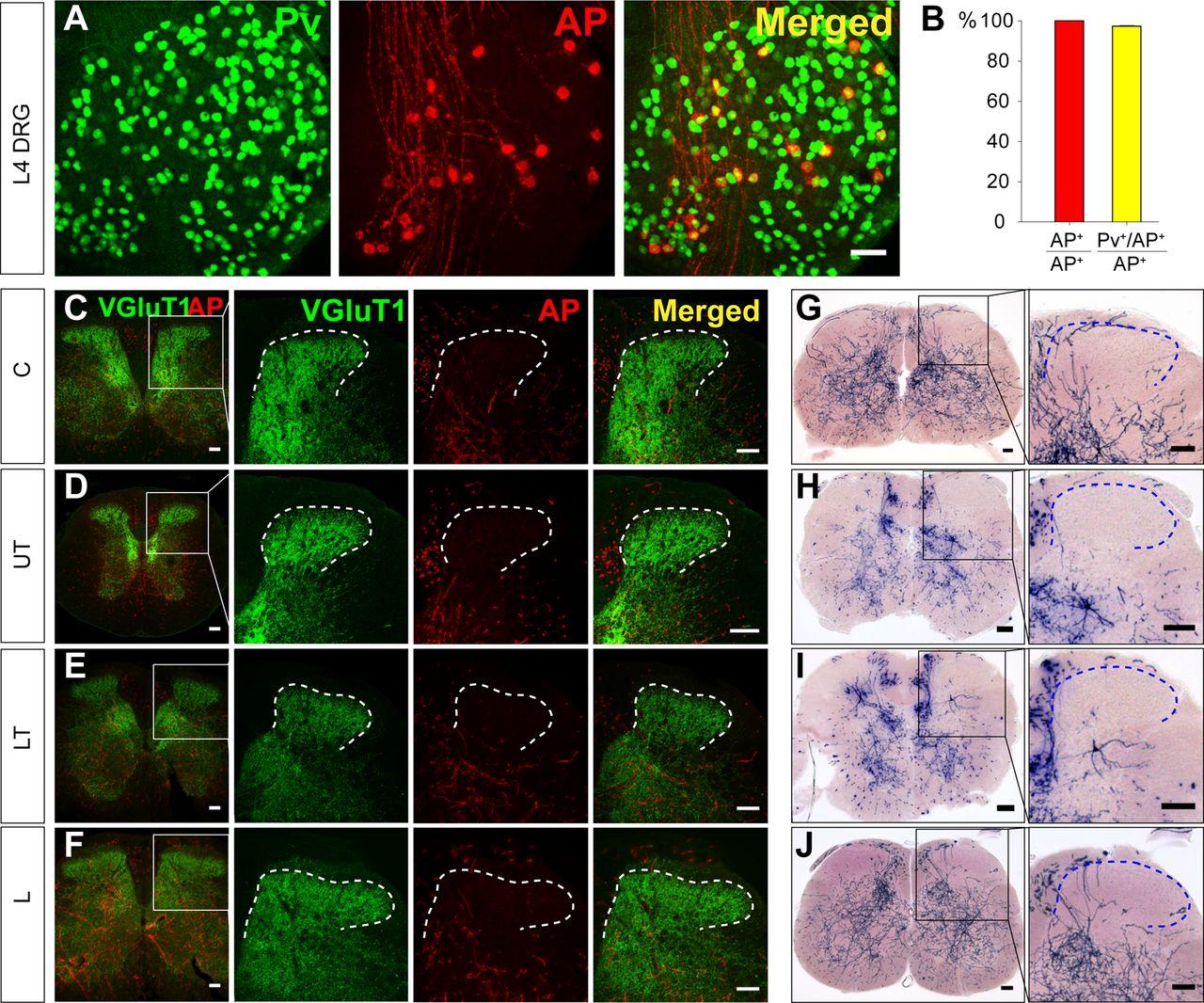 Modality-Based Organization of Ascending Somatosensory Axons in the ...