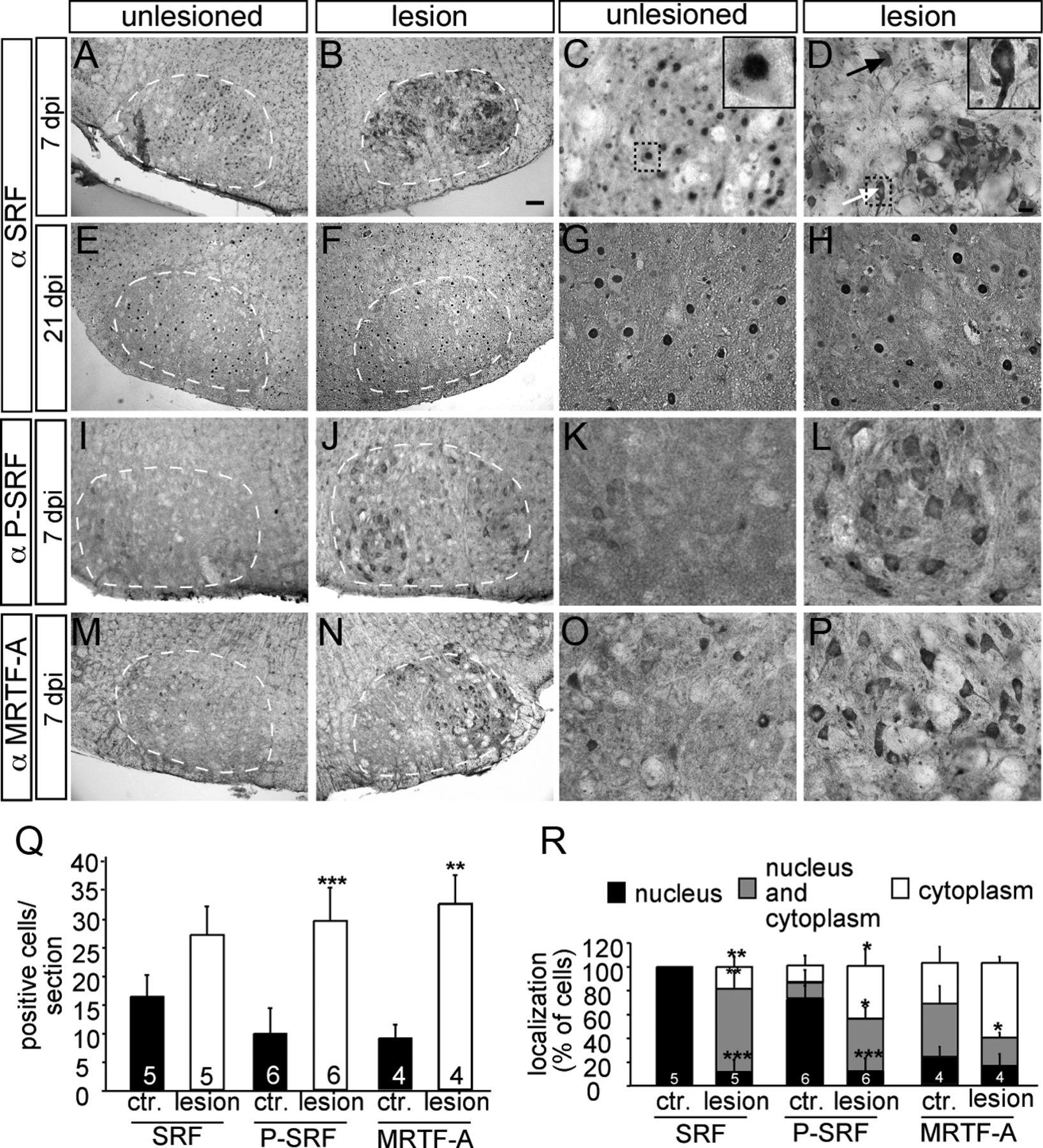 The Transcription Factor Serum Response Factor Stimulates Axon