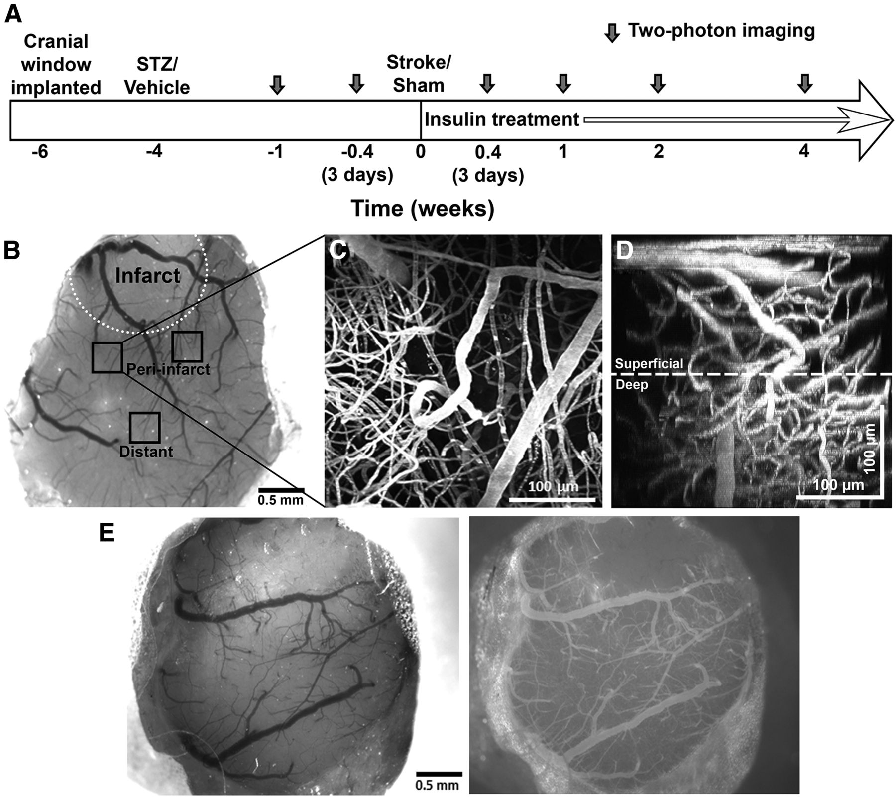 Diabetes Augments In Vivo Microvascular Blood Flow
